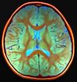 Brain MRI 133204 rgbca.png