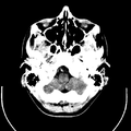 Computed tomography of human brain (3).png