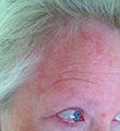 Day01 shingles or Herpes Zoster Virus attacking forehead and eye.jpg