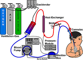 Membrane technology - Venous-arterial extracorporeal membrane oxygenation scheme