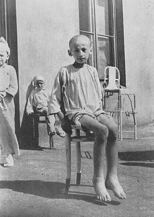 Hunger Disease Clinical Research in Famine Performed in the Warsaw Ghetto in 1942