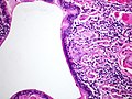 Hypersensitivity pneumonitis (4704849502).jpg