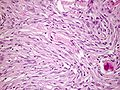 Meningioma fibromatous variant.jpg