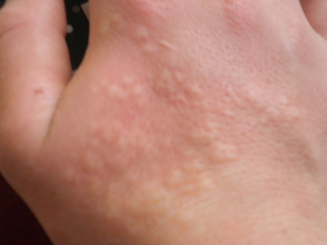 A hand with a stung by the stinging nettle, with visible bumps on the skin.