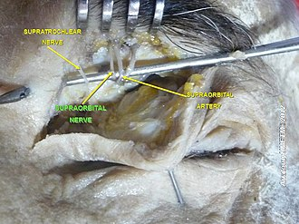 Supraorbital nerve - Image: Slide 2h