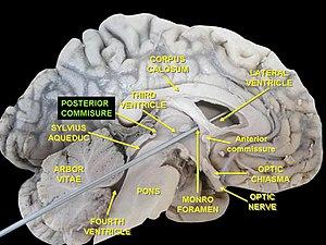 Posterior commissure - The posterior commissure labelled on a human brain