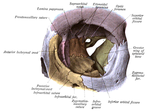 "Superior orbital fissure - Orbit seen from the front, with bones labeled in different colors, and superior orbital fissure at center as an ""hour-glass"" formation."