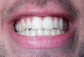 diente humano wikipedia la enciclopedia libre
