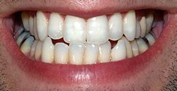 varför ilar tänderna