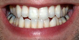 Permanent teeth - Adult mouth showing full set of permanent teeth