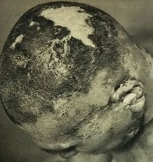 Nuclear testing at Bikini Atoll - The head of one of the crew members of Daigo Fukuryū Maru, showing radiation burns caused by fallout that collected in his hair. Dated on 7 April 1954, 38 days after the nuclear test.