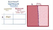 File: Ventricular tachycardia.webm