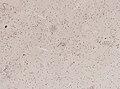 Wuchereria bancrofti (YPM IZ 093339).jpeg