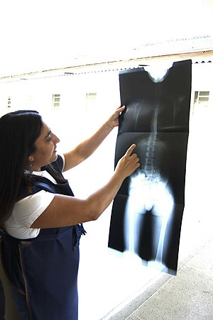 Projectional radiography - X-ray under examination