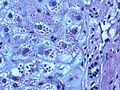 400x Diastase PAS liver AT1.jpg