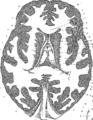 Anatomia Britannica- a system of anatomy Fleuron N001319-39.png