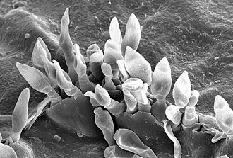 Dothideomycetes - The reproductive conidia of Venturia inaequalis erupting through the cuticle of a crabapple leaf