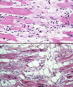 Arrhythmogenic right ventricular cardiomyopathy - histology.jpg