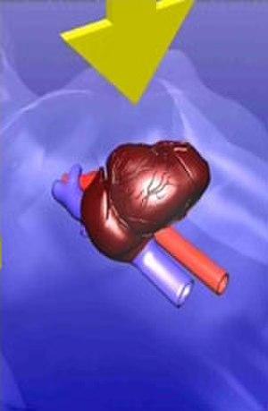 AutoPulse - Cardiac Pump - Compresses mainly the heart