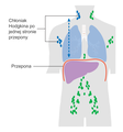 Diagram showing stage 2 Hodgkin's lymphoma CRUK 208 pl.png