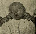 Diseases of children for nurses (1911) (14591469158).jpg