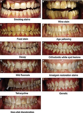 Tooth whitening - Wikipedia
