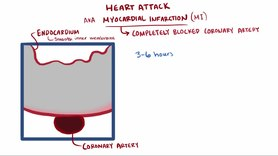 Datei:Heart attack video.webm