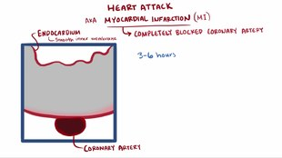 ملف:Heart attack video.webm