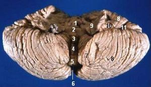 Anatomy of the cerebellum - Image: Human cerebellum anterior view description