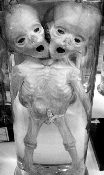 File:Human conjoined twins DSC09364.jpg