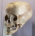 Human skull with hydrocephalus - 2.jpg