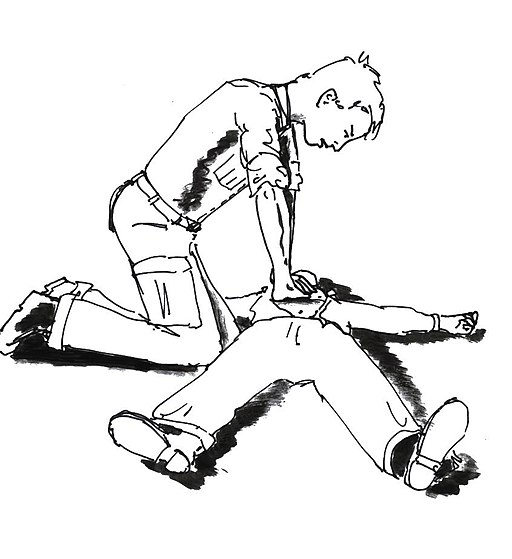 Illustration of cardiopulmonary resuscitation