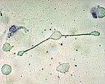 A macrophage with two cell membrane extentions reaching to engulf particles