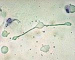 A macrophage