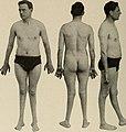 Nervous and mental diseases (1908) (14777888562).jpg