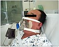 Non-invasive ventilation.jpg