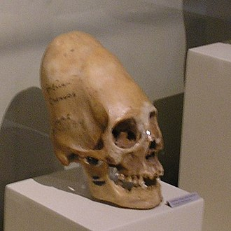 Osteochondroprogenitor cell - Image: Paracas Skulls Ica Museum Two