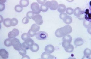Plasmodium ovale 01.png