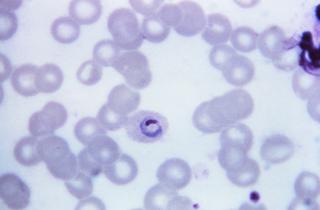 species of parasitic protozoan