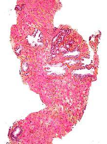 Точки биопсии предстательной железы