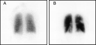 Ventilation/perfusion scan - Image: Pulmonary embolism scintigraphy P Lo S