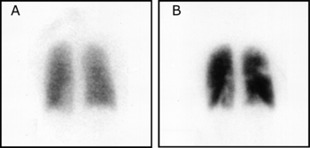 Pulmonary embolism scintigraphy PLoS.png