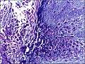 Skin biopsy showing molluscum contagiosum 40X.jpg