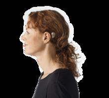 Bone Anchored Hearing Aid Wikipedia