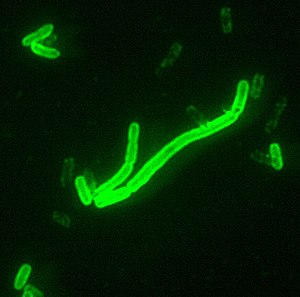 Yersinia pestis seen at 2000x magnification. T...