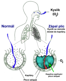 A schematic diagram of the human lungs with an empty circle on the right representing a normal alveola and one on the right showing an alveola full of fluid as in pneumonia
