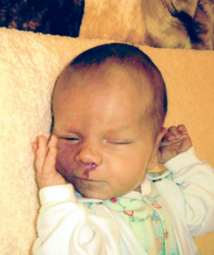 Beckman Laser Institute - Image: A new born child with m cm syndrome