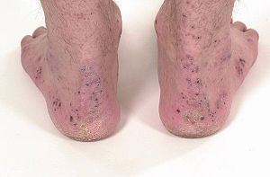 Crusts around the ankles and feet in a patient...