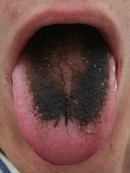 File:Black tongue.jpg