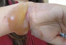 STD Facts - Genital Herpes - cdc.gov